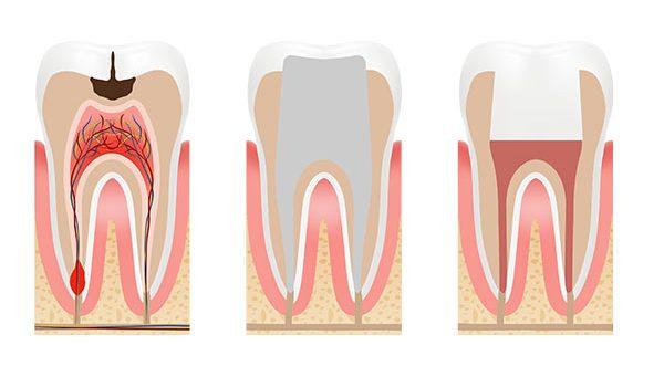Endodontia - Clínica Dentária New Dente