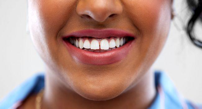oral care, dental hygiene and people concept - close up of Estética dental - Clínica Dentária New Dente