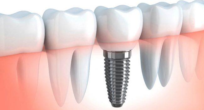 Implantologia Dentária - Clínica Dentária New Dente