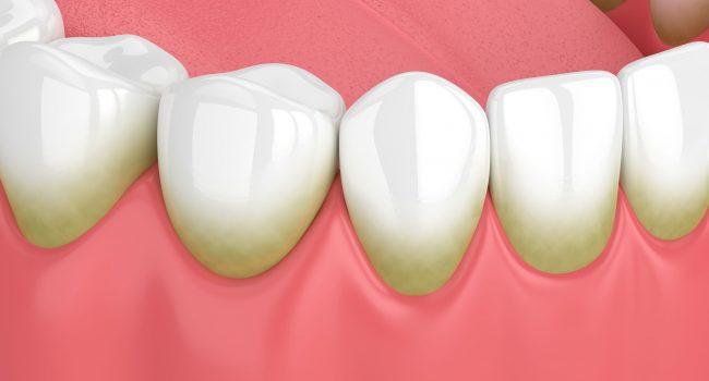 Periodontia - Clínica Dentária New Dente